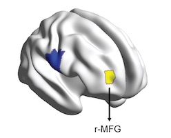 Right mid-frontal gyrus highlighted in yellow on this grey model of the brain
