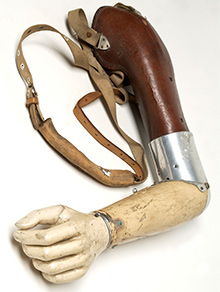 old prosthetic arm