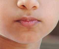 chin without cleft