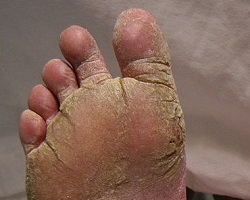 Athlete's foot tinea pedis
