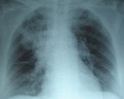 Lung xray in patient with pneumonia