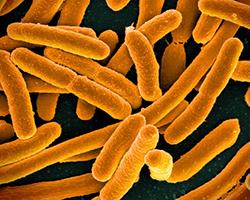 An orange colorized image of E. coli bacteria
