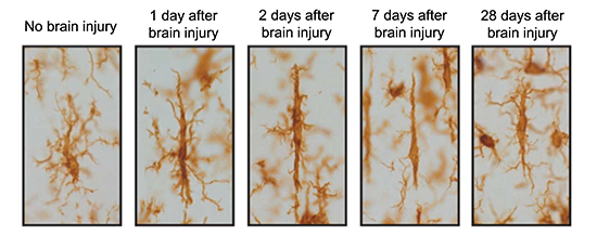 Microglia images during the days after a brain injury