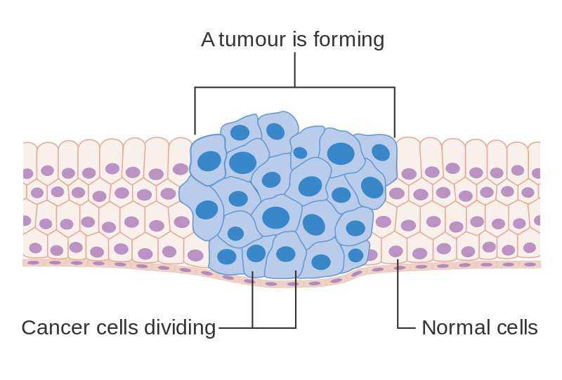 cancer oncology and nearby healthy cells The stem cell transplantation program at cancer treatment centers of america provides advanced medical therapies for blood-related diseases, combined with integrative oncology services to keep you strong and reduce side effects.