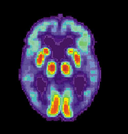 PET scan of a brain with Alzheimer's disease