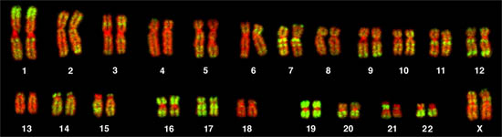 Human Female Chromosomes