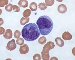 White Blood cells - monocytes