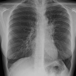 Lungs infected with TB