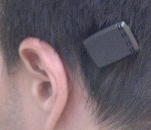 Bone-anchored hearing device