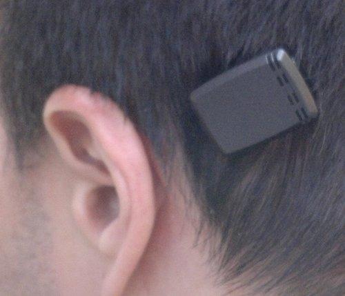 les prothèses auditives à ancrage osseux