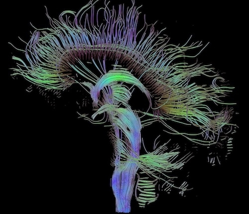Brain fiber tracts shown in green and purple colors