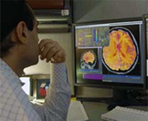 A researcher looking at brain scans