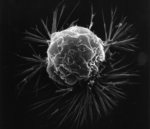 A scanning electron microscope image of a blood cancer cell