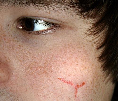 Facial scar