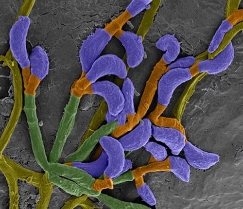 Fungus in bat tissue