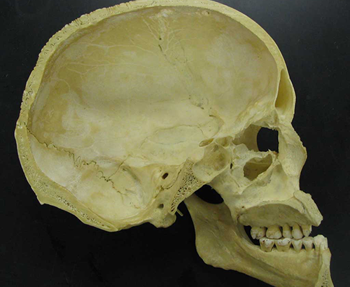midsaggital section of a skull